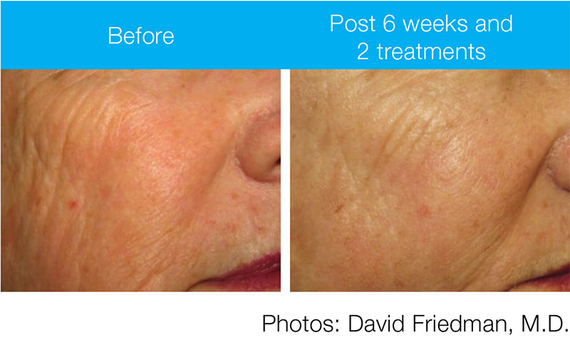 PicoWay Resolve-Before & After 1-Dr. Mastruserio