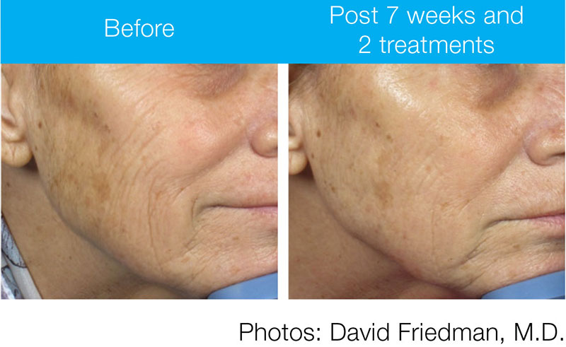 PicoWay Resolve-Before & After 2-Dr. Mastruserio
