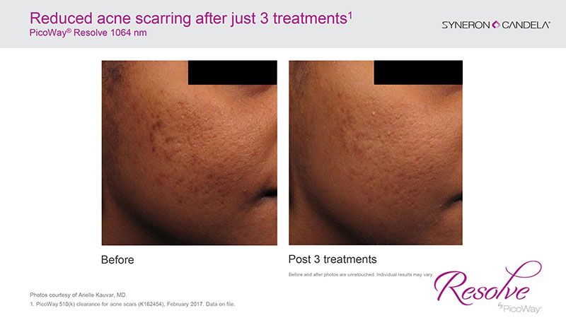 PicoWay Resolve-Before & After 3-Dr. Mastruserio